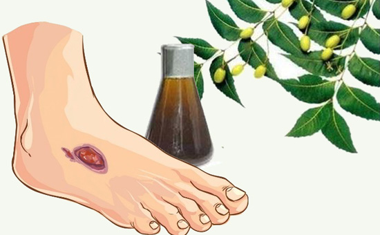 Effect of Neem oil and Haridra on non-healing wounds