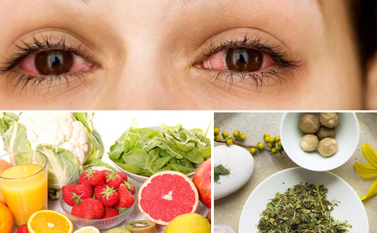 Home Remedies for Eye Irritation