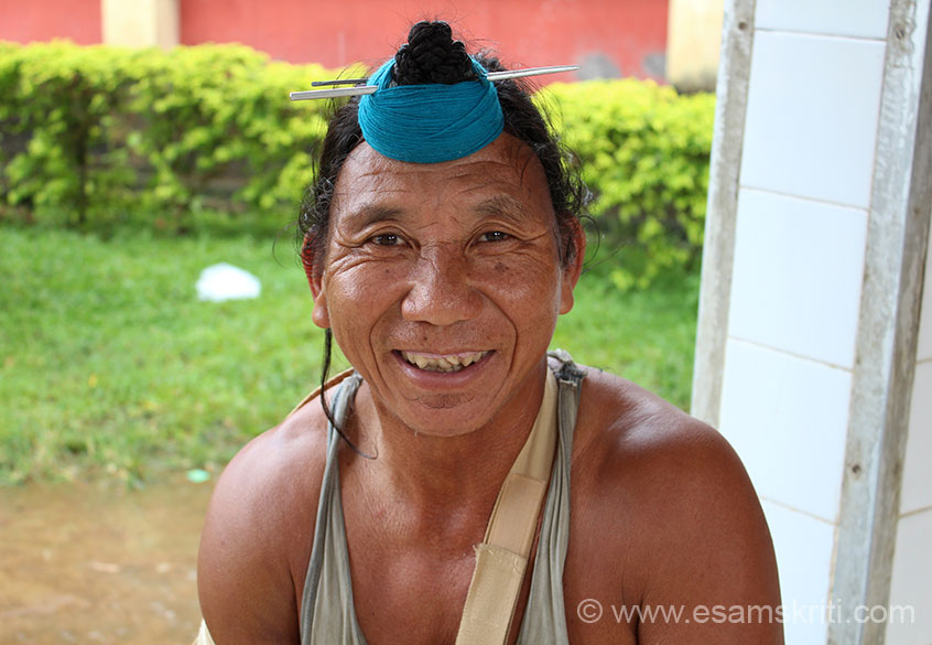 Local come for treatment, belongs to the NYISHI tribe. He has a knot of hair rolled into a bun over this forehead. In their headdress they wear weathers of the great Hornbill bird.